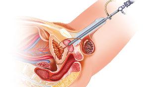 Orgazmus lehetséges távoli prosztata adenoma esetén
