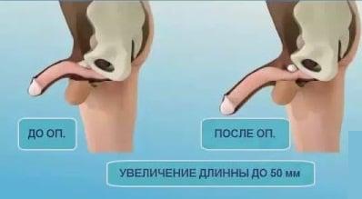 Pénisz - penis, fallos, hímvessző