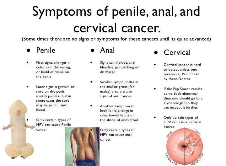 hogy nézhet ki a pénisz pénisz alakú ember