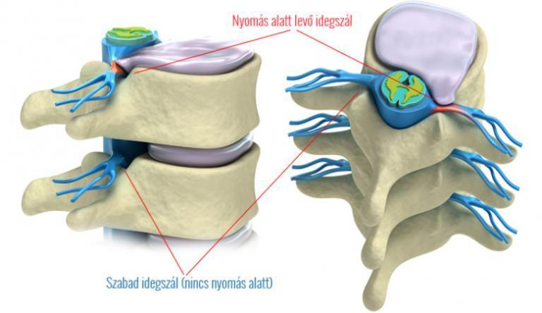 A combcsont vagy a femorális-szexuális ideg megsértése