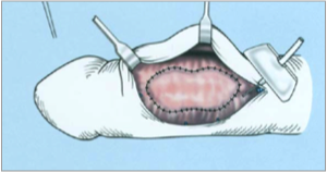 A görbe hímvessző hátterében - A Peyronie betegség