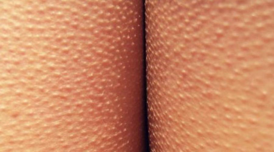 a pénisz pigmentációja