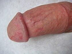 a pénisz betegsége a közösülés során