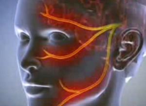 merevedés közben a fej nem nyílik ki teljesen