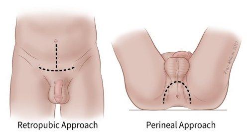 mit befolyásol a pénisz megnagyobbodása