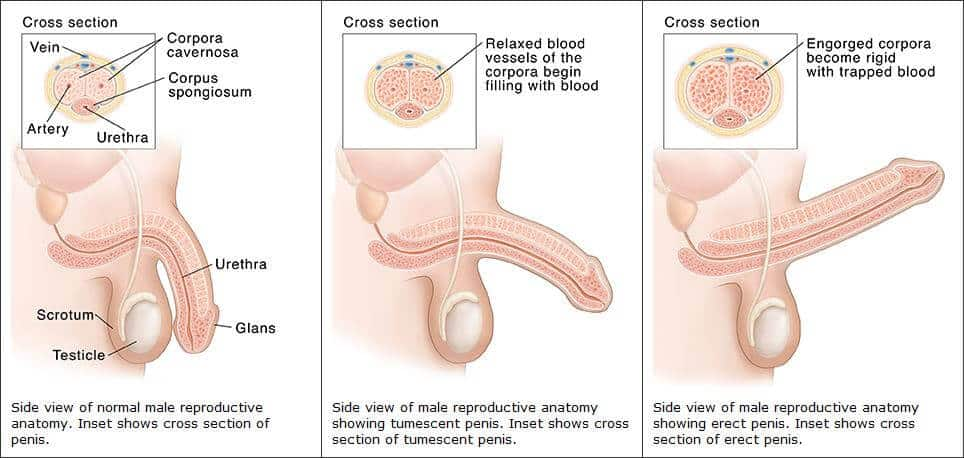 erekció utáni fájdalom hogyan kell helyesen használni a péniszgyűrű rögzítését