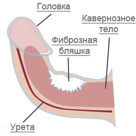 A Peyronie-betegség | vedakhaza.hu