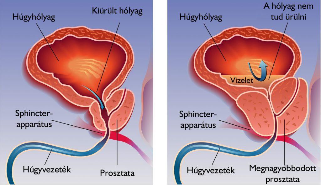 prosztatagyulladás esetén az erekció hasznos