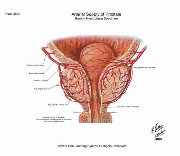 rossz erekció a prosztatagyulladás kezelése után fontos a pénisz hossza
