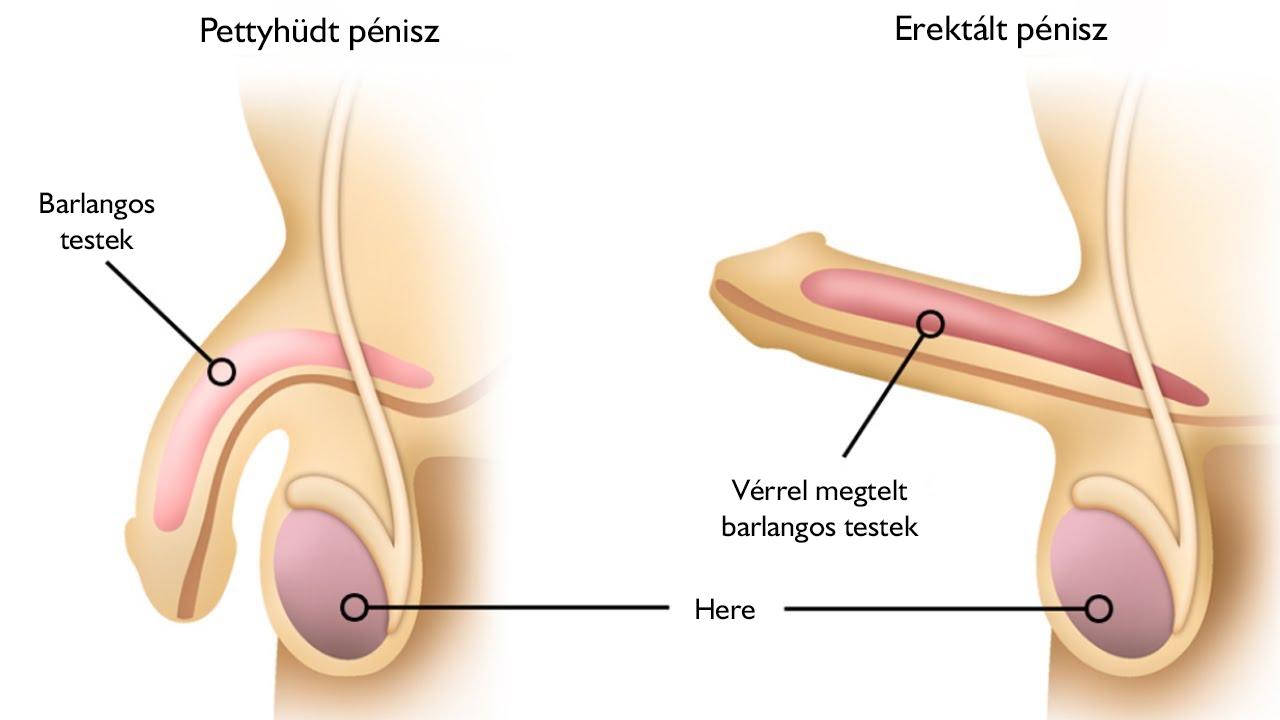spontán merevedés erekció után a fityma duzzanata