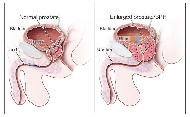 van-e erekció a prosztata műtét után