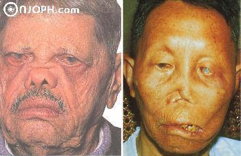 Torna és sport prosztatagyulladás és prosztata adenoma esetén - Lipoma