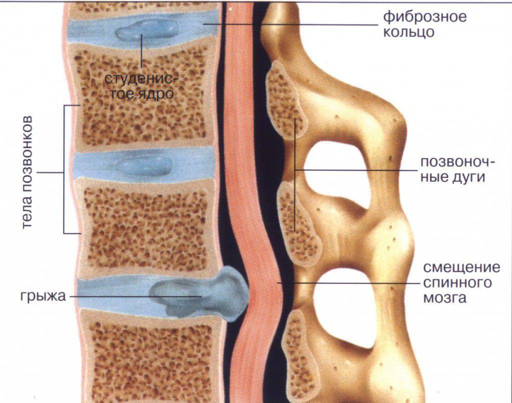 merevedés és ágyéki osteochondrosis leesett a pénisz